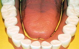 Procedimentos de implantes dentários acessíveis