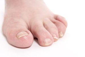 Tratamentos de sal epsom para unhas encravadas