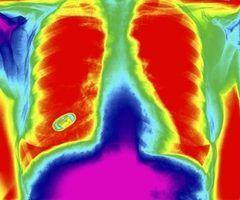 Fatores que afetam a saturação de oxigênio