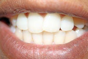 Os alimentos a evitar, após o clareamento dos dentes
