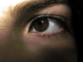 Maneiras caseiros para se livrar de círculos escuros sob os olhos