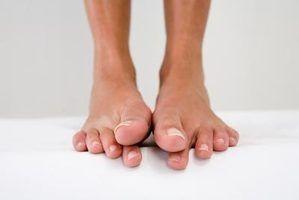 Como obter um dedo do pé anestesiada para unhas encravadas