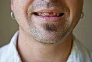 Como fazer um dente, quando se está faltando?