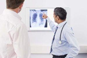 Dicas de entrevista para os cargos de radiologia tecnólogo