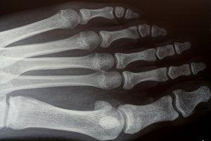 Partes de uma máquina de raios-x