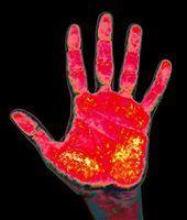 As desvantagens de termografia