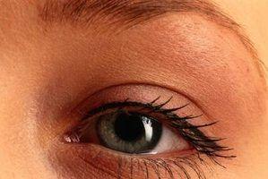 Quais são as causas de alterações de cor dos olhos?
