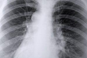 Quais são os sinais e sintomas de tecido cicatricial nos pulmões?