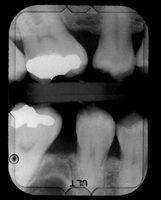 O que faz com que obturações dentárias a doer?